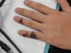 Dolmen de Gauttobry - English: AgNO3 stain