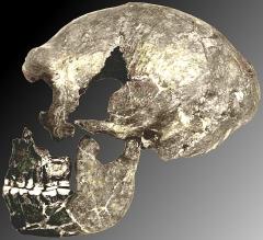 Gisement paléolithique dénommé Gisement de la Quina - English: The La Quina H5 skeleton in 1912