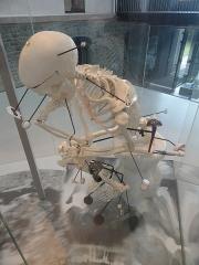 Musée national Adrien Dubouché et Ecole des Arts Décoratifs -  limoges_porcelain_museum_adrien_dubouche_medical_porcelain_implants